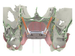 Ortodoncia digital