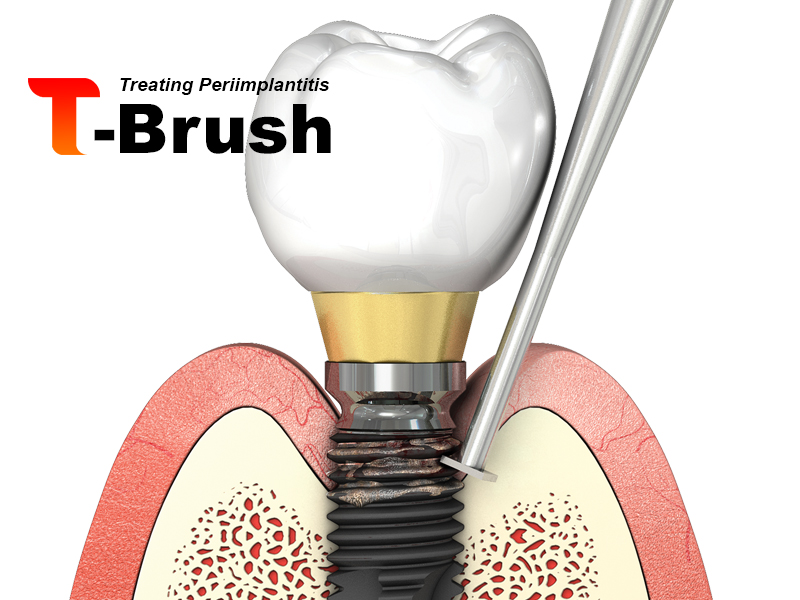 T-Brush cepillo limpiador de implantes