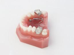 TopJet distalizador de molares