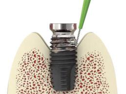 i-Brush cepillo limpiador de implantes