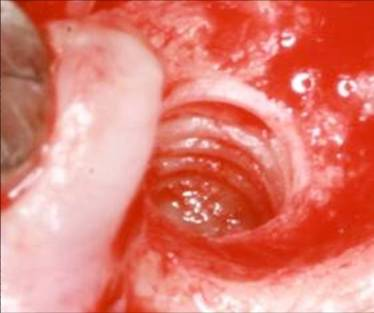FR Kit extractor de implantes sin trefina