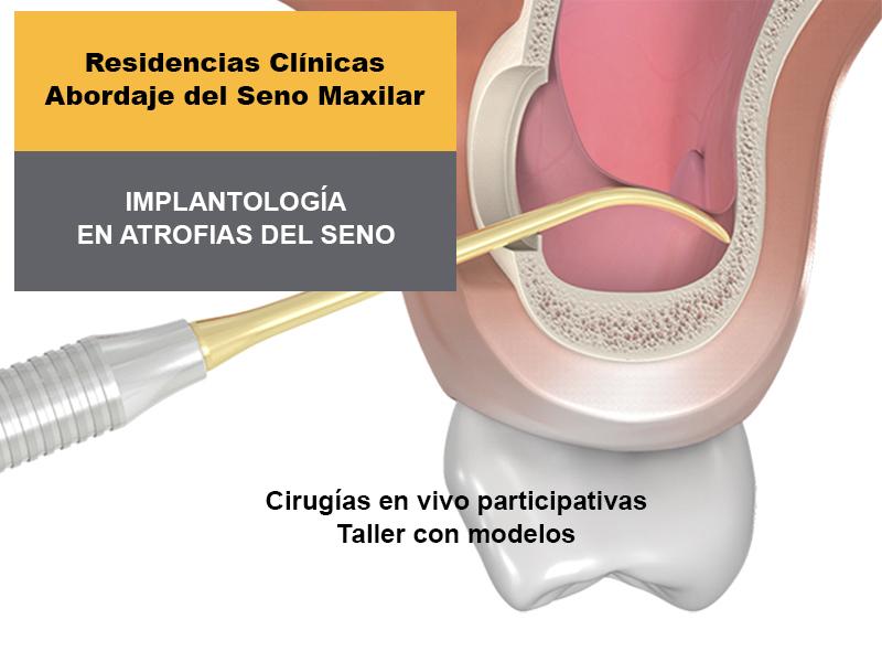 Implantologia en atrofias del seno