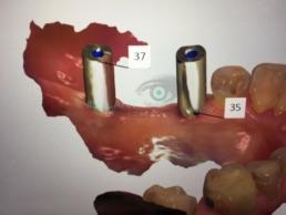 Rehabilitación digital con implantes IS-II active