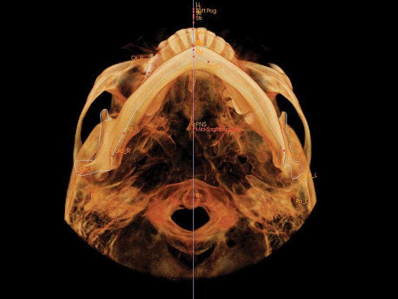 Dentri: Sistemas de Rayos-X Dental CBCT - Recursos Médicos