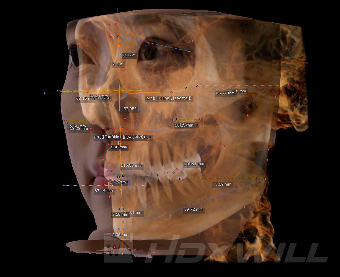 Dentri análisis cefalometría