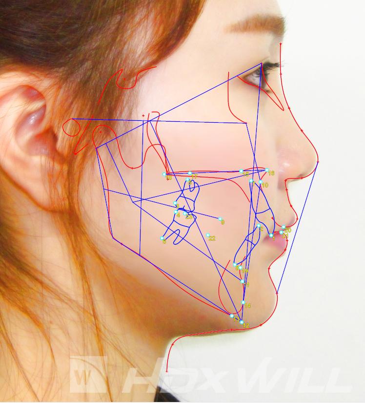 Dentri análisis cefalometría antes