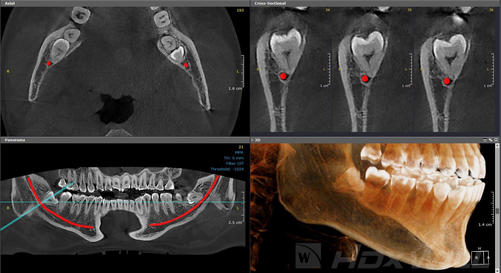 Dentri cirugía oral y cordales