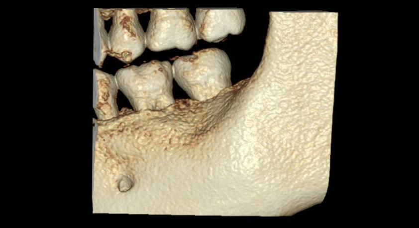Dentri FREE FOV visualización foramen mentoniano
