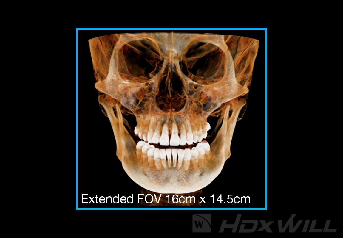 Dentri FOV 16x14,5cm