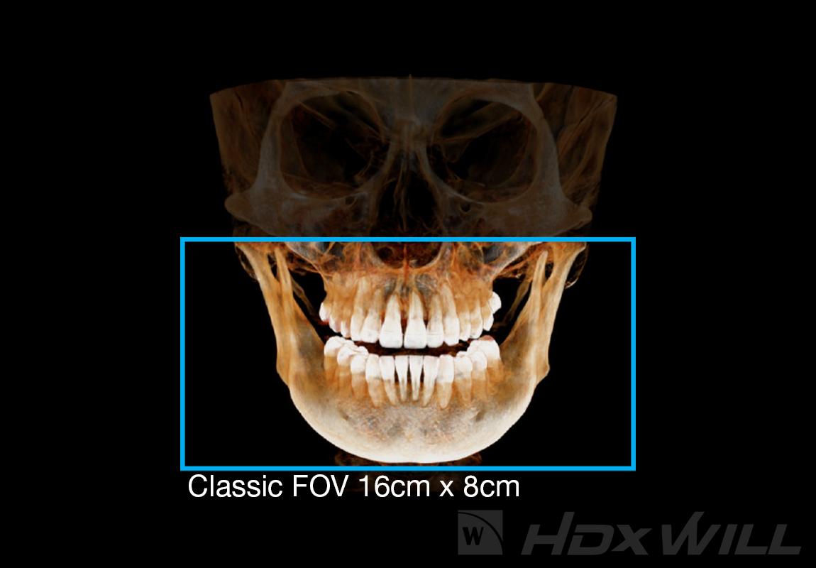 Dentri FOV 16x8cm
