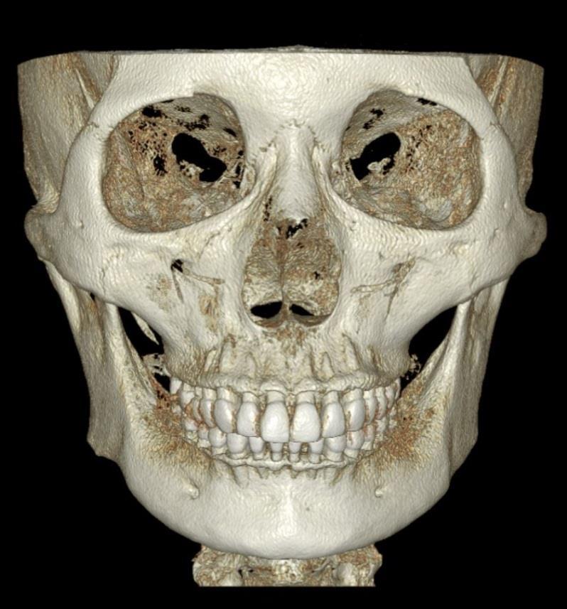 Dentri FOV 16x14,5