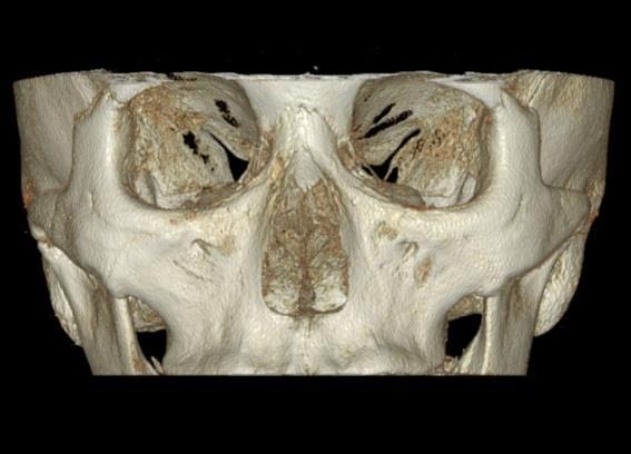 Dentri FOV 16x8 visualización seno y ATM