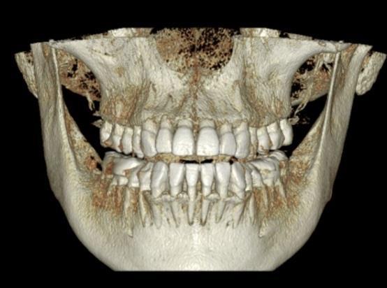 Dentri FOV 16x8 visualización maxilares