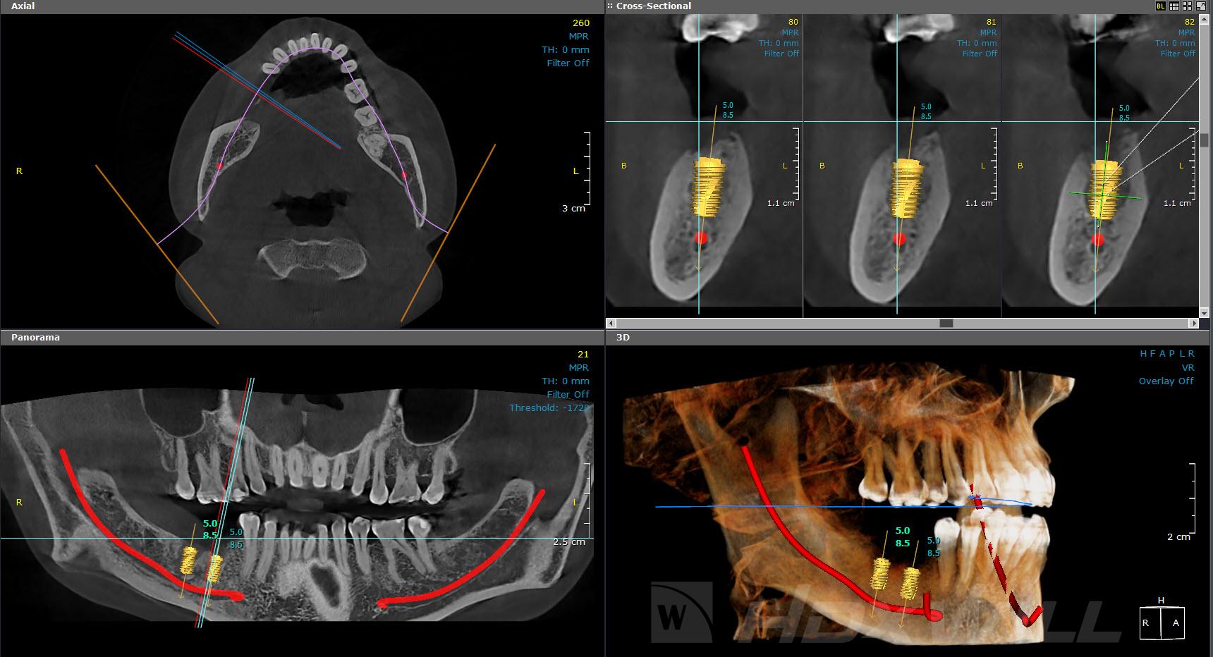 Dentri Planificación implantes