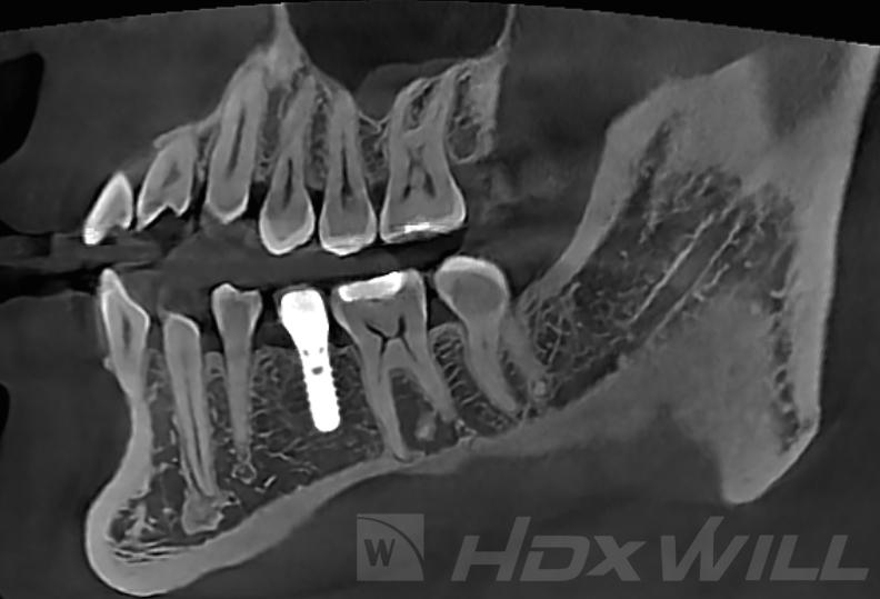 Dentri MAR sagital