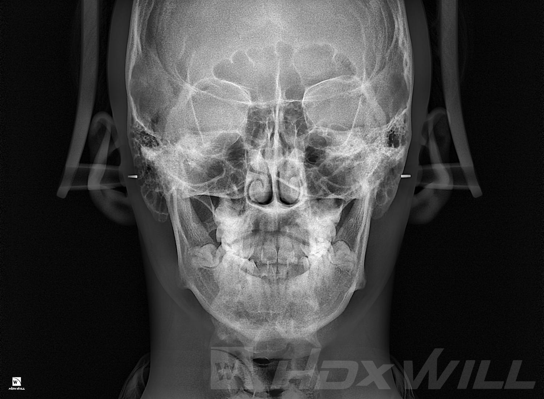 Dentri RX frontal