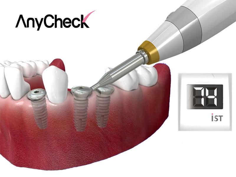 AnyCheck medidor de estabilidad de implantes