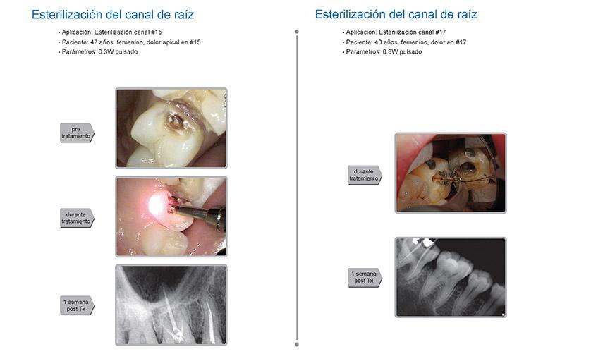 Casos clínicos K2 mobile: endodoncia