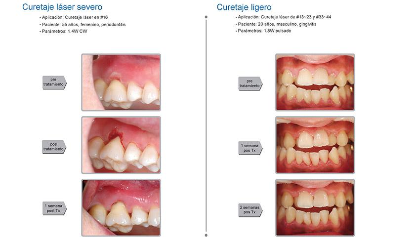 Casos clínicos K2 mobile: periodoncia