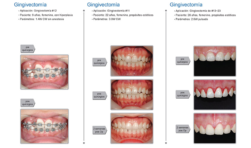 Casos clínicos K2 mobile: cirugía