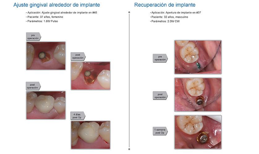 Casos clínicos K2 mobile: implantes