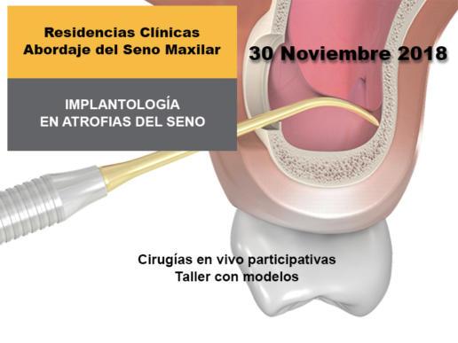Implantologia en atrofias del seno Nov 2018