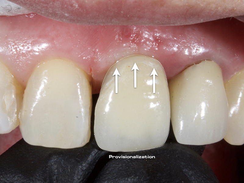 Implantes IS2 Neobiotech