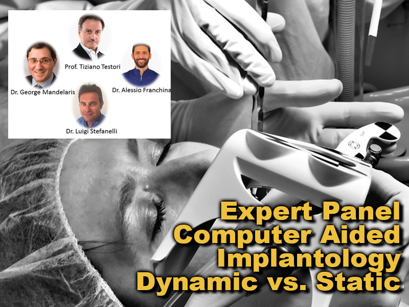 Computer Aided Implantology Dynamic vs. Static