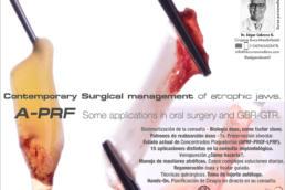 Manejo quirúrgico contemporáneo de maxilares atróficos