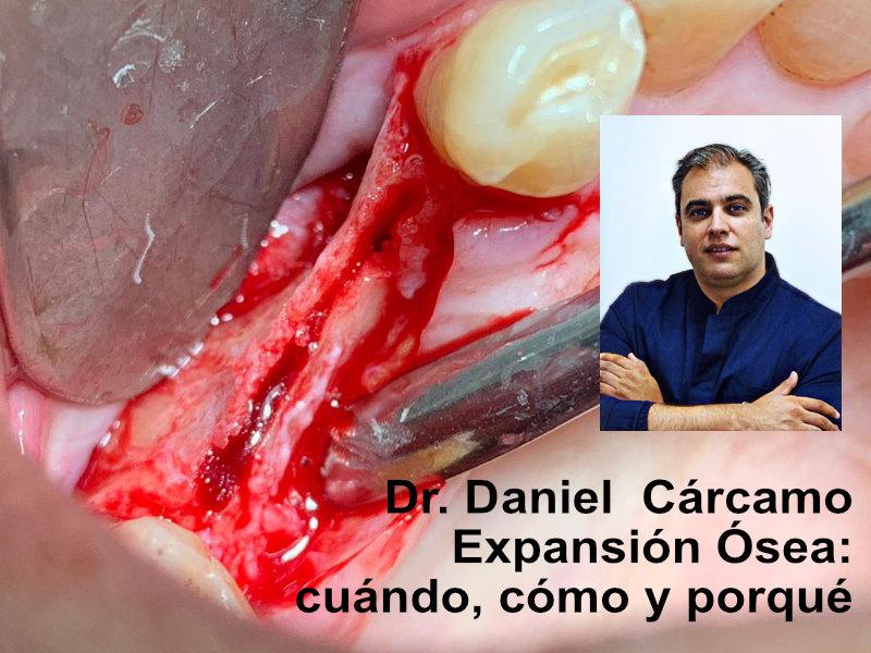 Webinar Dr Daniel Carcamo
