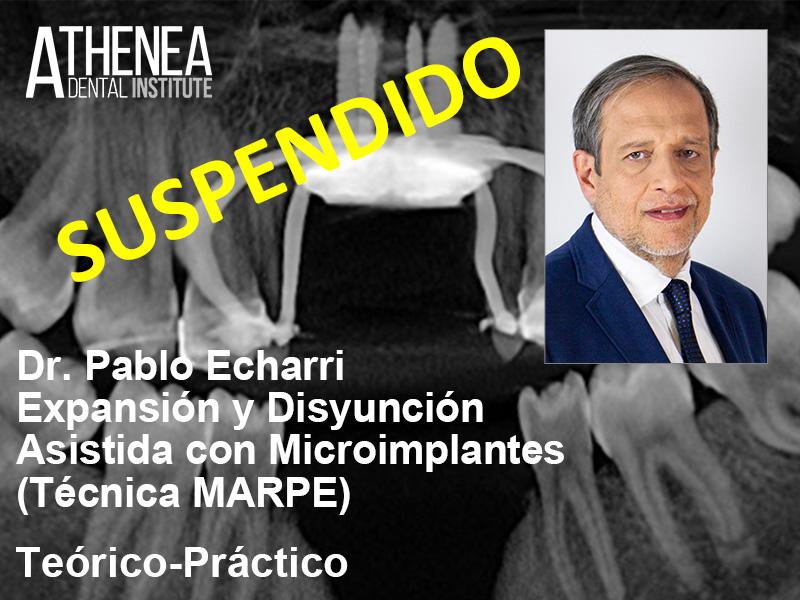 Dr. Echarri - Expansión y Distinción Palatina MARPE