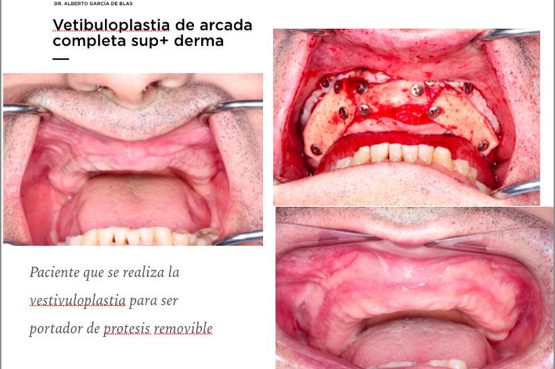 Webinar 14 Abril 2020 - Dr. Alberto Garcia de Blas