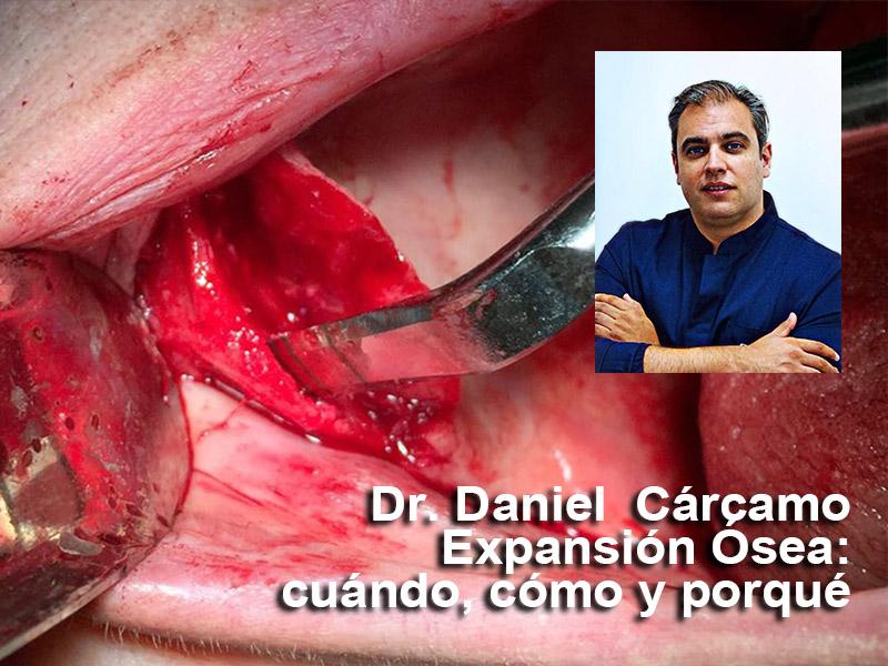 Webinar Dr. Daniel Carcamo
