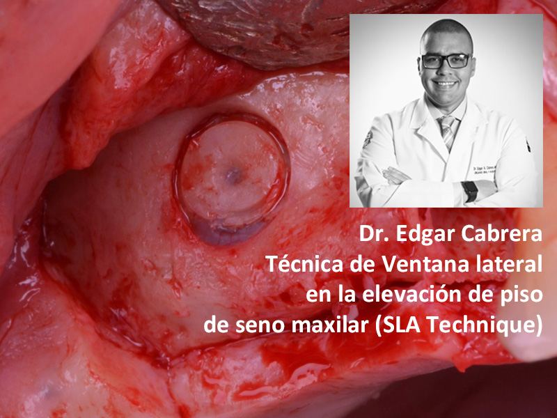 Webinar 8 Abril 2020 - Dr. Edgar Cabrera
