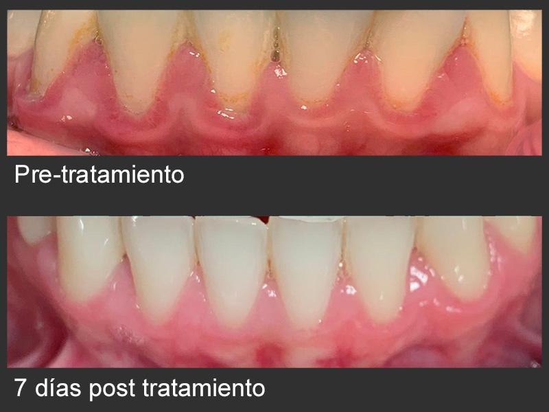 Whitebite periodontitis- gel peróxido de hidrógeno