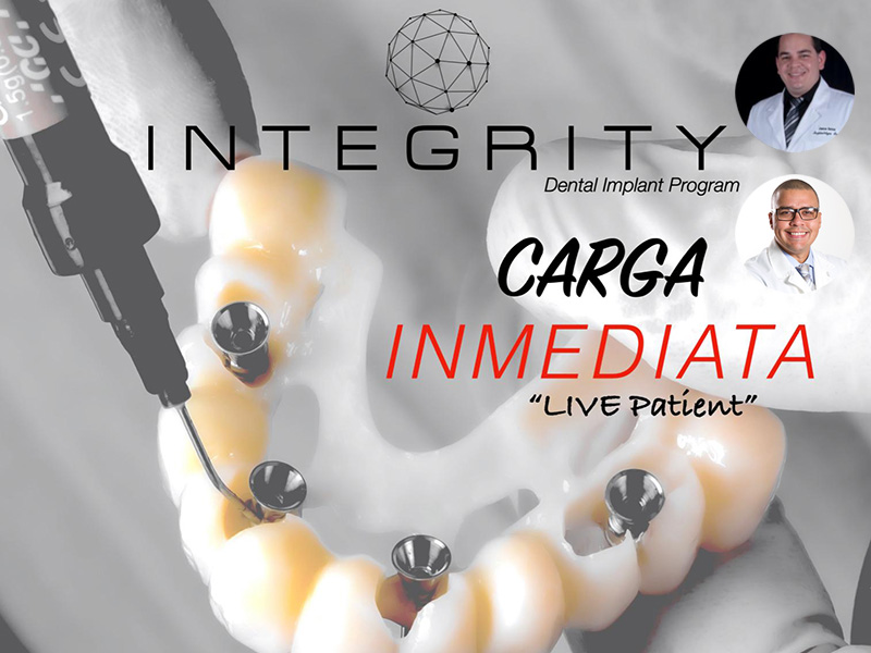 Carga Inmediata. Integrity.