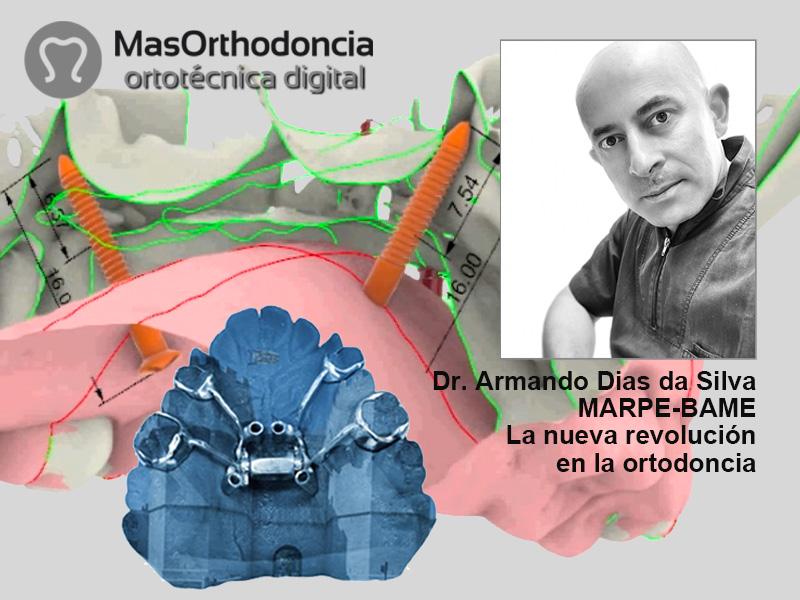 MARPE-BAME La nueva revolución en ortodoncia