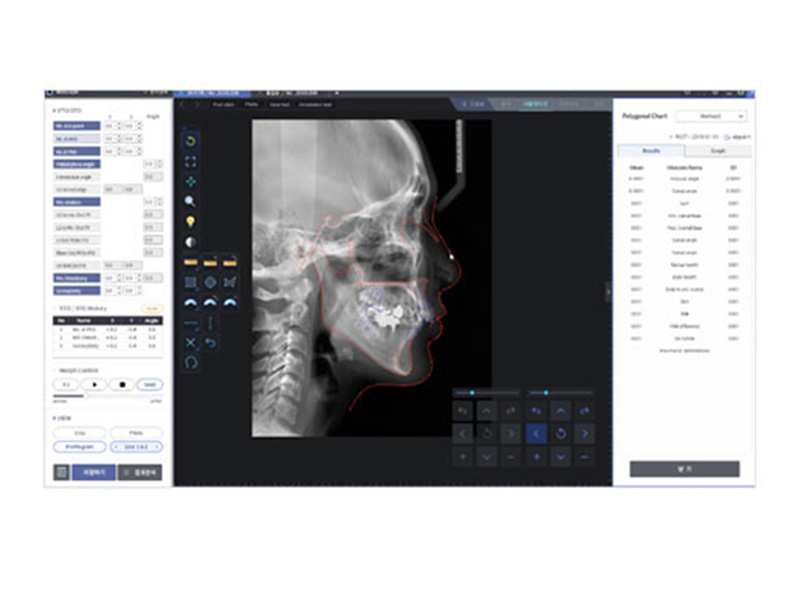 eco-x CBCT Software