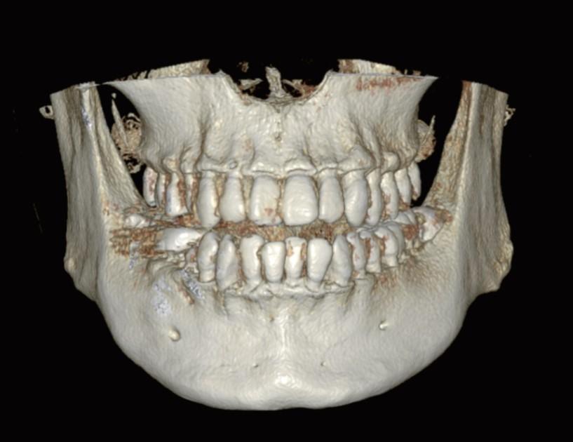 eco-x FOV 16x9 cm posición para maxilares