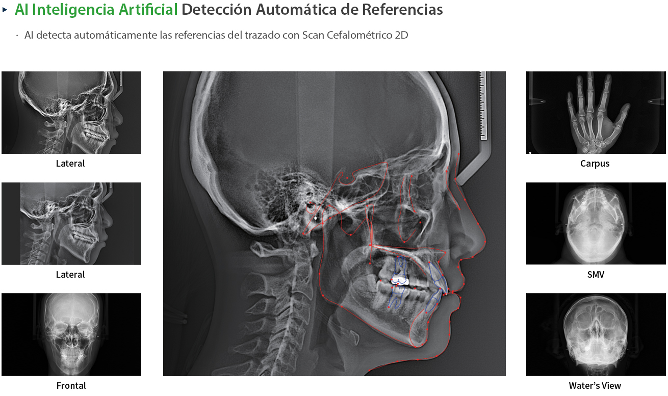 eco-x AI: Autodectección referencias cefalometría