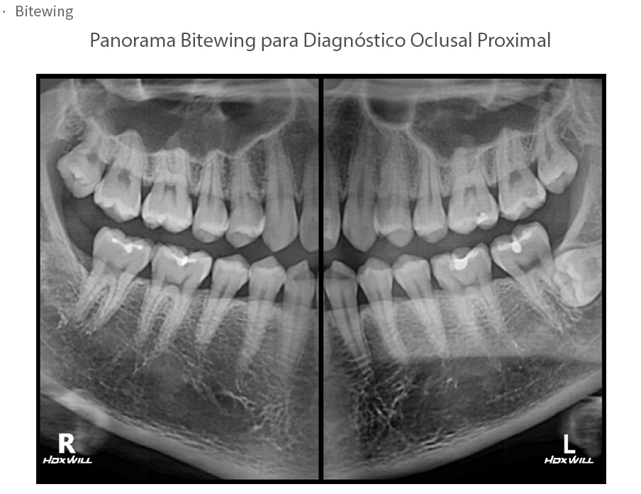 eco-x Panorámica Bitewings