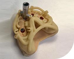 Magnetic Mallet - Cirugía guiada