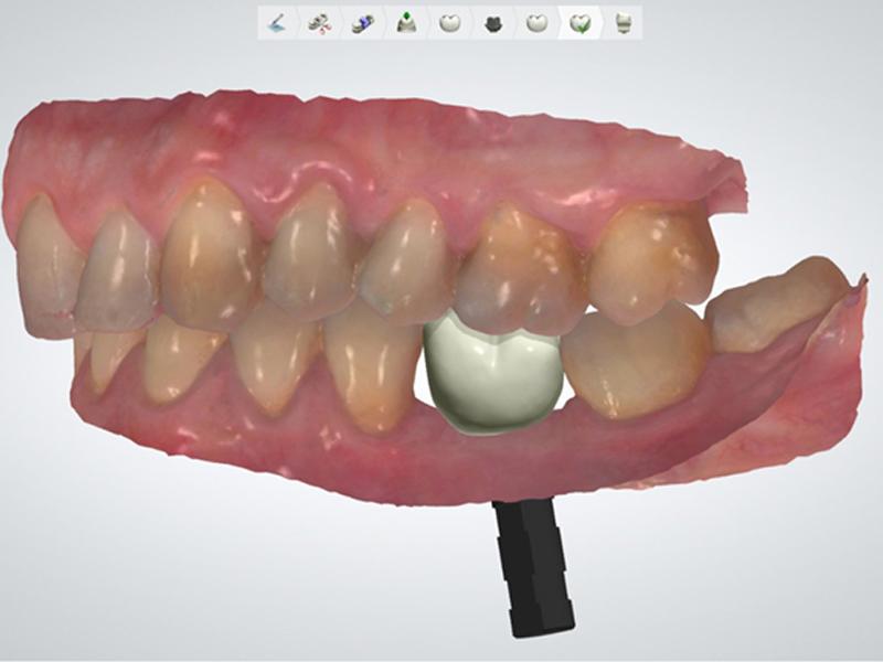 Planificación CAD corona zirconia en implante Neobiotech